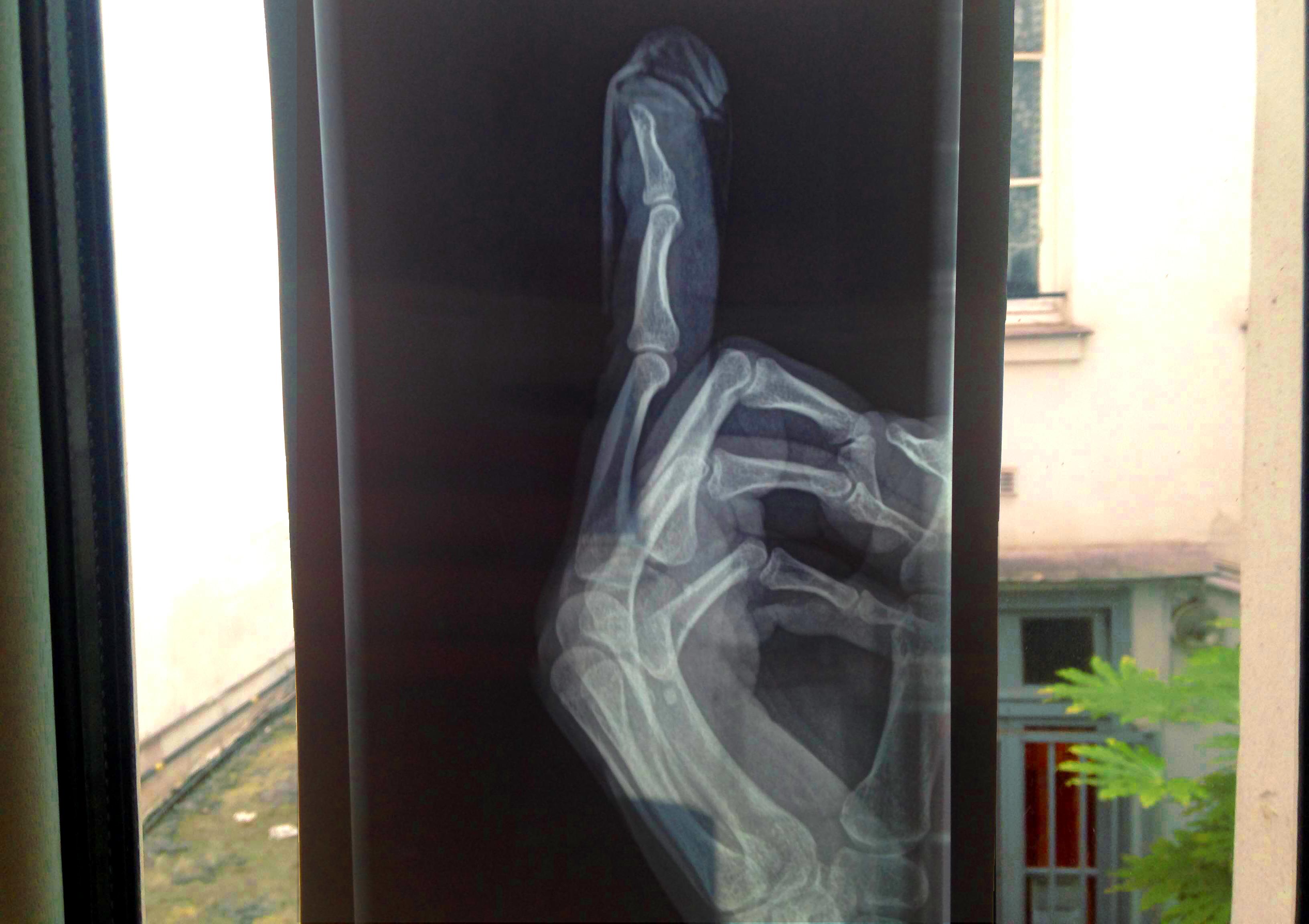radiographie2